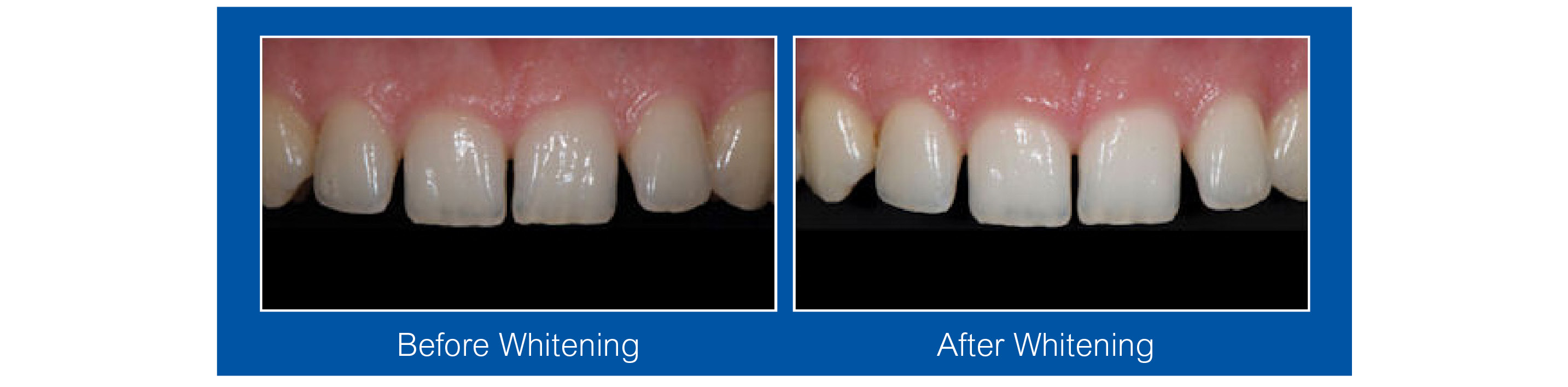 Teeth Whitening Waterloo