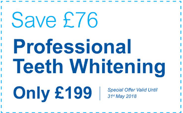 Special Offer: Teeth Whitening Now Only £199