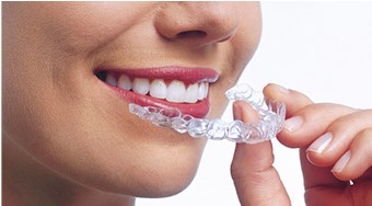 Straighten your Teeth in as little as Six Months with Clear Aligners